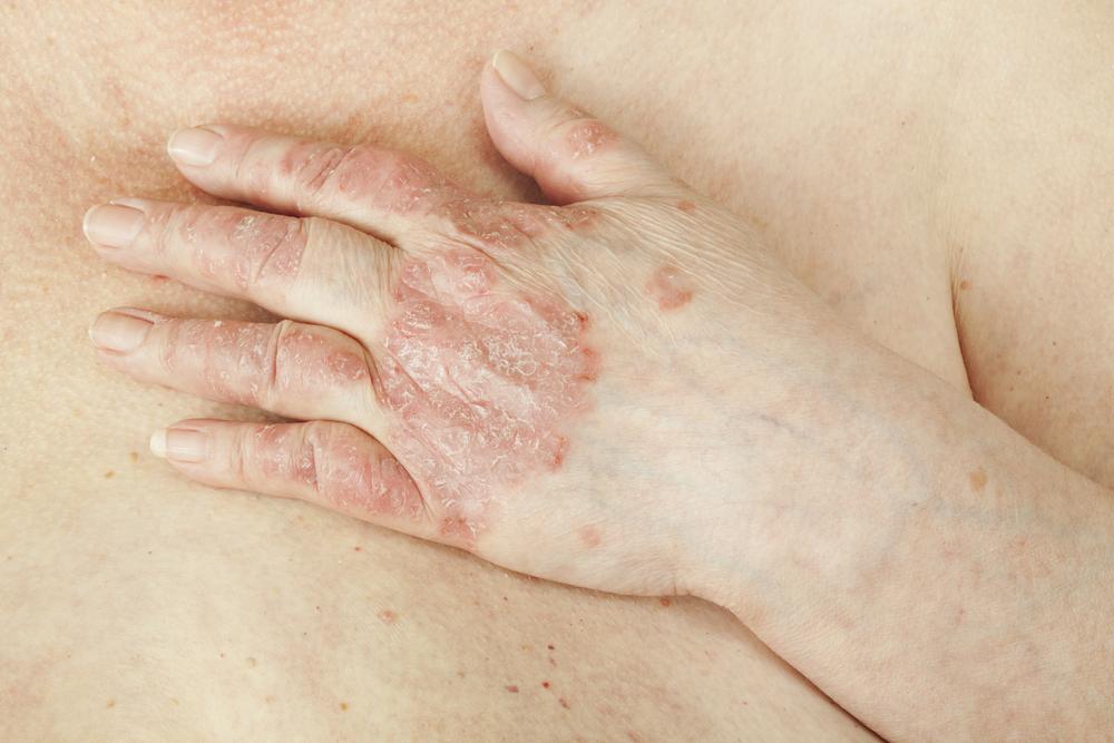 skin health - eczema