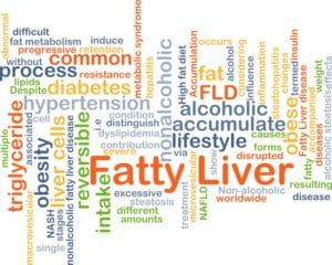 Curcumin Reduces Liver Fat in Patients with Non-Alcoholic Fatty